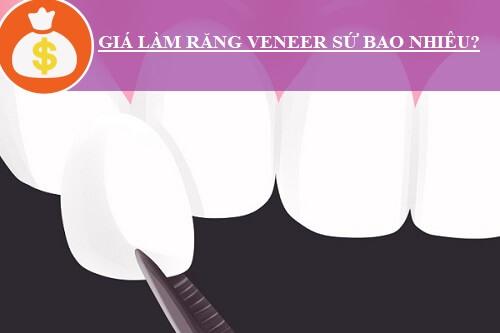 Giải đáp thắc mắc: Giá làm răng Veneer sứ bao nhiêu tiền? 1