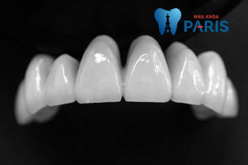 bọc răng sứ có đắt không phụ thuộc vào chất liệu mão sứ