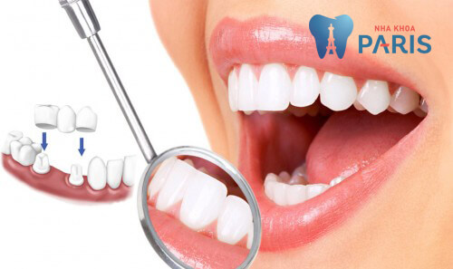 Bọc răng sứ GIÁ RẺ ĐẸP - Bảo hành toàn quốc - Độ bền cực cao 1