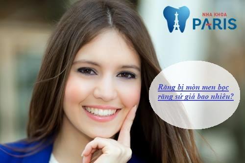 Răng bị mòn men bọc răng sứ giá bao nhiêu
