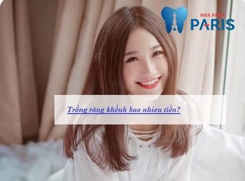 trồng răng khểnh bao nhiêu tiền