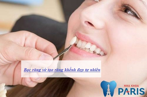 trồng răng khểnh bao nhiêu tiền là chuẩn nhất
