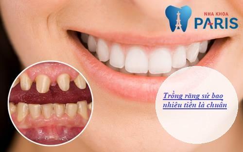 trồng răng sứ bao nhiêu tiền