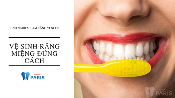 3 kinh nghiệm làm răng Veneer TRẮNG ĐẸP TỰ NHIÊN 3