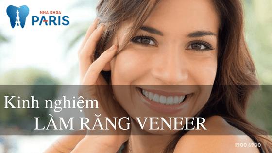 3 kinh nghiệm làm răng Veneer TRẮNG ĐẸP TỰ NHIÊN 1