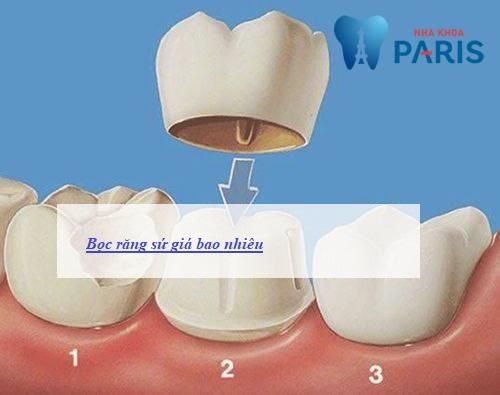 bọc răng sứ giá bao nhiêu tiền với từng loại răng sứ