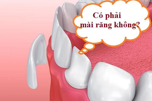 [Giải đáp] Dán răng sứ không mài răng có được không? 1