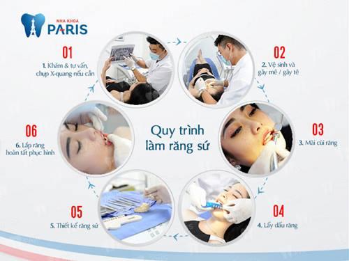 quy trình bọc răng sứ mất bao lâu để hồi phục