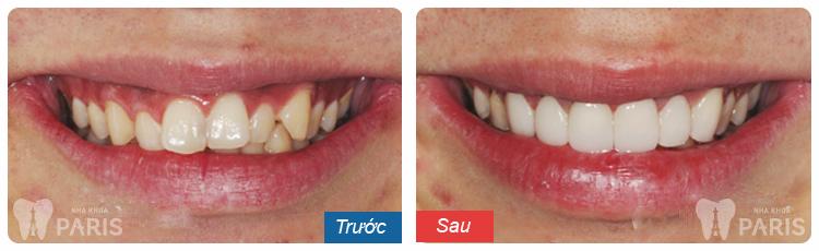 Công nghệ phủ răng sứ - Phục hình răng thẩm mỹ đến từ tương lai 5