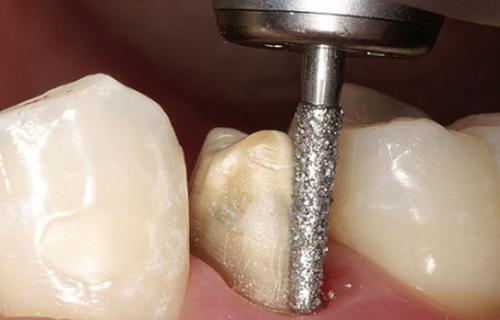 Mài răng cửa có ảnh hưởng gì không? Có đau không? -0