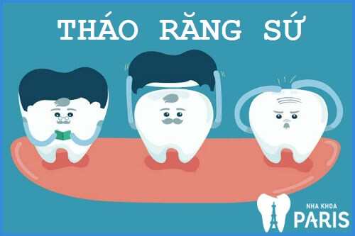 Tháo răng sứ có đau không? Quy trình tháo răng sứ ra sao? 1