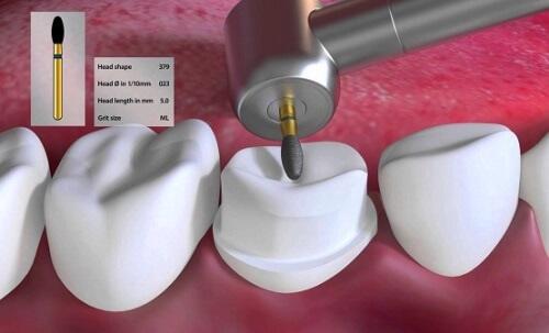 Tháo răng sứ có đau không? Quy trình tháo răng sứ ra sao? 2