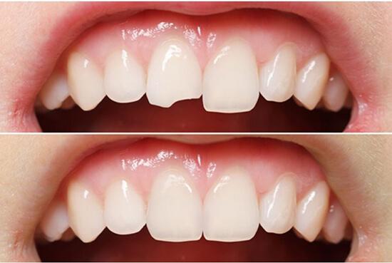 trồng 1 răng sứ giá bao nhiêu