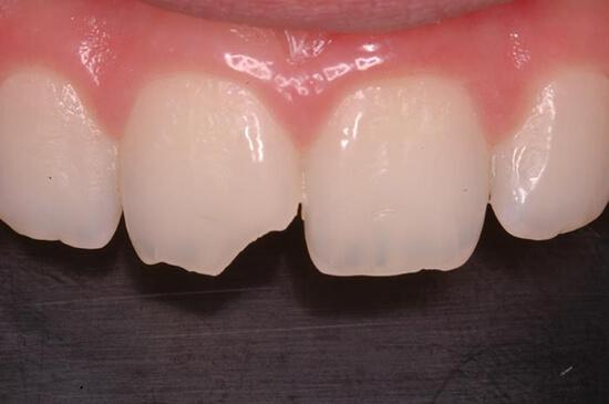 Bọc răng sứ một chiếc được không