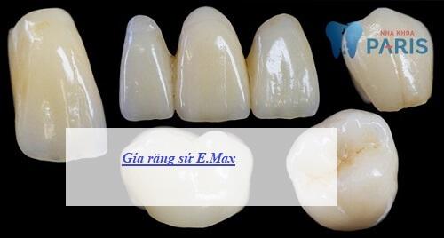 giá răng sứ E.max