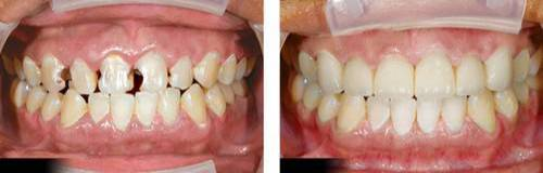 giá răng sứ E.max34