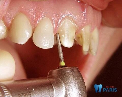 Bọc răng sứ có thể bị viêm lợi nếu nha sĩ thực hiện sai kỹ thuật mài răng