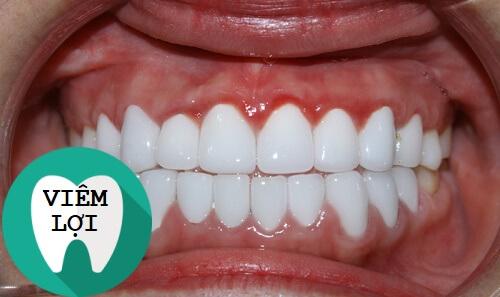 3 Biến chứng sau khi bọc răng sứ bạn cần ĐẶC BIỆT CẢNH GIÁC 1