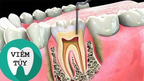 3 Biến chứng sau khi bọc răng sứ bạn cần ĐẶC BIỆT CẢNH GIÁC 3
