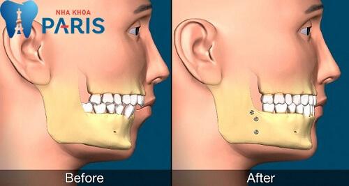 Phẫu thuật hàm hô trong tình trạng hô do hàm
