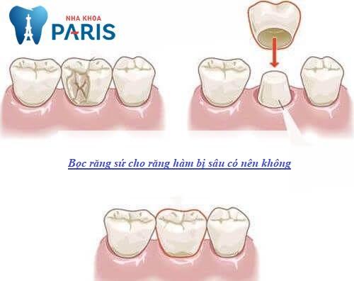 bọc răng sứ cho răng hàm bị sâu có nên không