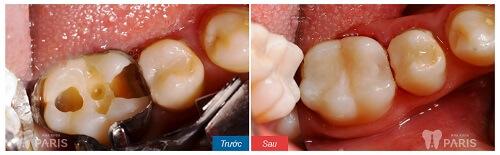 Giải đáp: Có nên thực hiện bọc răng sứ cho răng hàm bị sâu không? 3