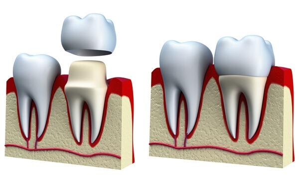 3 yếu tố quyết định đến việc bọc răng sứ màu nào đẹp? 2