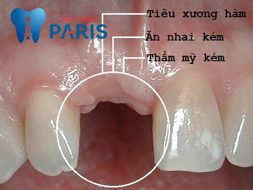 Mơ rụng răng báo hiệu điềm gì? Phải làm gì nếu bị rụng răng thật 4