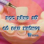 Bọc răng sứ có đau không? Muốn không đau phải làm thế nào?