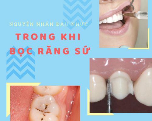 Bọc răng sứ có đau không và có để lại biến chứng không? 2