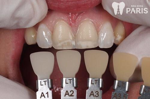 Có nên chọn màu răng sứ a1 để phục hình răng không? 1