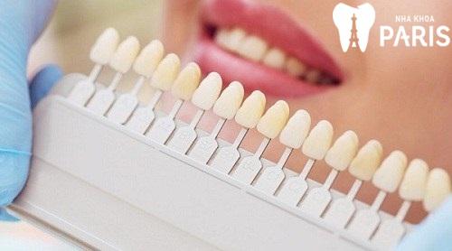 Có nên chọn màu răng sứ a1 để phục hình răng không? 2
