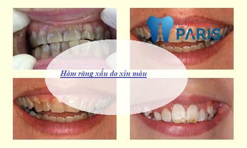 3 Kiểu hàm răng xấu Thường Gặp và cách khắc phục Hiệu Quả Nhất 2