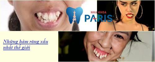3 Kiểu hàm răng xấu Thường Gặp và cách khắc phục Hiệu Quả Nhất 1