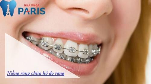 Niềng răng cho tình trạng hô do răng