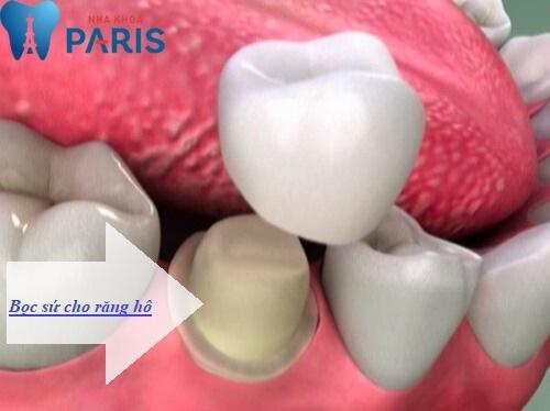 Bọc răng sứ khắc phục răng hô hiệu quả và thẩm mỹ nhất