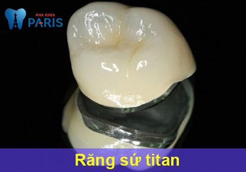 Bọc răng sứ titan - Phục hình răng thưa, mẻ, xỉn màu,... độ bền 20 năm 1