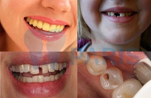 Bọc răng sứ titan - Phục hình răng thưa, mẻ, xỉn màu,... độ bền 20 năm 2