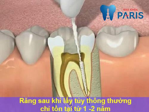 Bọc răng sứ có phải lấy tủy không? Chuyên gia giải đáp 4