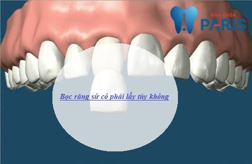 Bọc răng sứ có phải lấy tủy không? Chuyên gia giải đáp 1