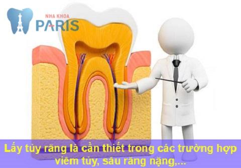 Bọc răng sứ có phải lấy tủy không? Chuyên gia giải đáp 3