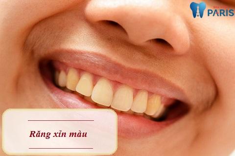 Đâu là cách chữa răng xỉn màu nhanh chóng và hiệu quả?