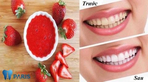 Chữa răng bị xỉn màu đen từ dâu tây