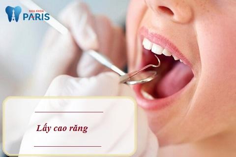 Lấy cao răng giúp răng sáng bóng, sạch khuẩn