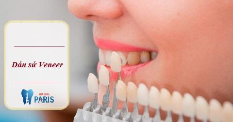 Dán sứ Veneer cũng là biện pháp cải thiện màu răng tốt