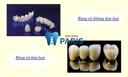 Bọc răng sứ giá bao nhiêu Chuẩn Nhất! Bảng giá ƯU ĐÃI TỚI 30% 2