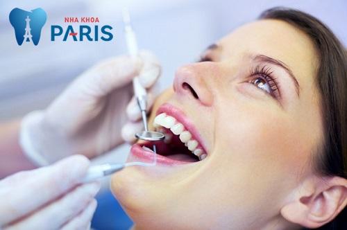 Mài răng nhọn là gì? Thực hiện như thế nào và cần lưu ý những gì? 2