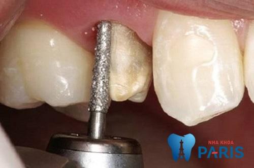 Mài răng nhọn là gì? Thực hiện như thế nào và cần lưu ý những gì? 3