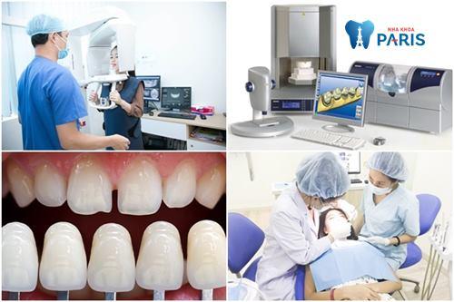 Công nghệ Nano 5S phát huy giá trị của răng toàn sứ Cercon đúng như bản gốc 100%