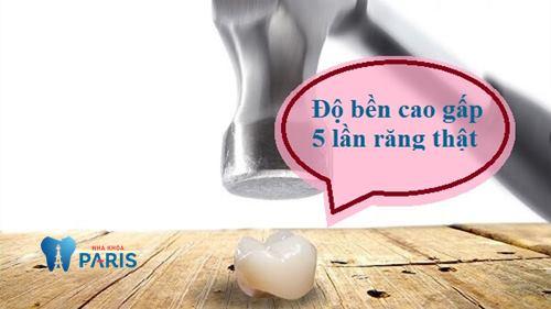 Răng toàn sứ Cercon có độ bền chắc gấp 5 lần so với dòng sứ thường, duy trì lên tới 25 năm